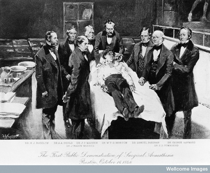 M0000173 First demonstration of surgical anaesthesia, 16th Oct 1846.